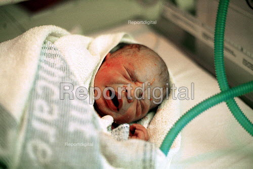 Newborn baby Seconds after Delivery - Duncan Phillips - 2002-01-17
