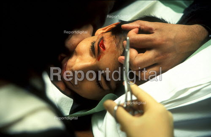 Boy receives stitches in casualty ward of Queen Elizabeth Hospital for Children. - Joanne O'Brien - 20021024