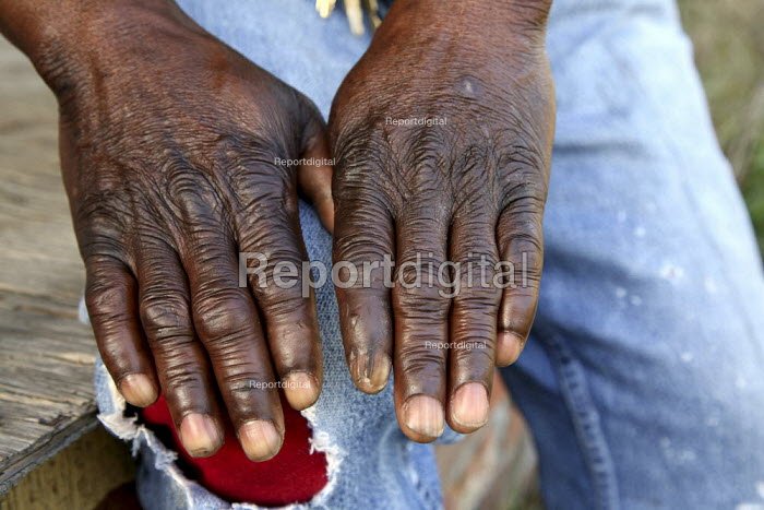 The hands of Jerry Ball, an African American poultry plant worker, and union steward at Pico Foods for the Laborer's Union. He has Carpal tunnel syndrome from 13 years in the plant. - David Bacon - 2008-01-15