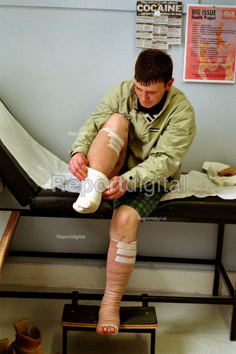 A young man gets treatment for leg ulcers at the Wounds Clinic in the Glasgow Offices of The Big Issue In Scotland. The ulcers are the legacy of years of injecting heroin. Big Issue Project. - Gerry McCann - 2002-09-22