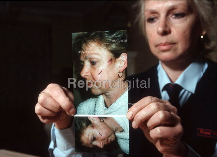 Injury at work, postal worker with a photograph of her injuries after an attack by an Alsatian dog which knocked her off her feet and bit her face as she delivered the owner's post. - John Harris - 1999-05-15