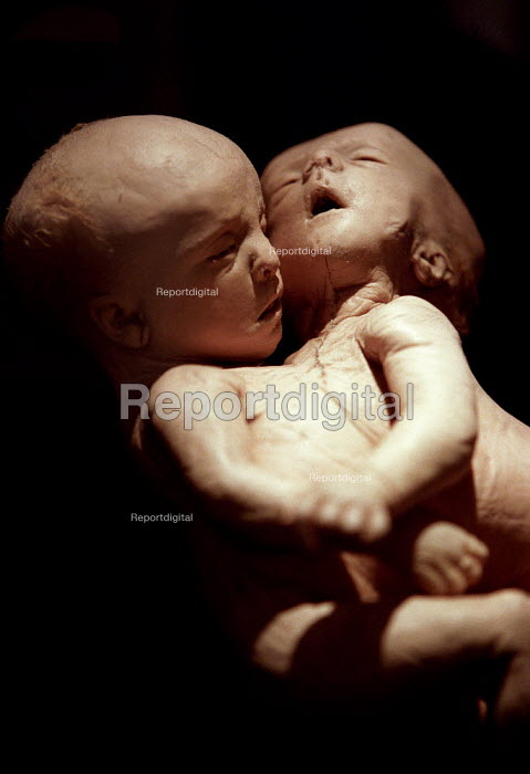 Human plastinated siamese twins specimen at the controversial Korperwelten art exhibition, Brussels, Belgium. - Jess Hurd - 2001-12-12