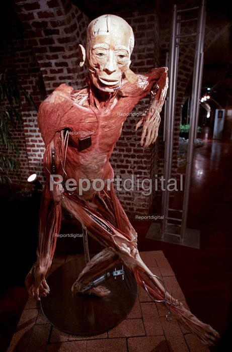 Orthopaedic Whole Body Plastination. Shows various surgical operations, and a pacemaker. Donated human body, controversial Korperwelten art exhibition, by Prof. Gunther Von Hagens MD, Brussels, Belgium. - Jess Hurd - 2001-12-12