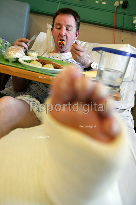 Patient with a fractured shin bone, both Tibia and Fibular eating food. Charing Cross Hospital. London. - Jess Hurd - 2007-03-13