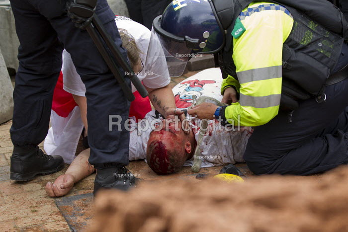 Injured EDL member treated by police medics. English Defence League protest in Birmingham, West Midlands. - Jess Hurd - 2013-07-20
