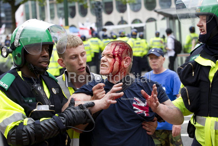 "Injured EDL member refusing treatment by police paramedic because the black officer was an ""Infidel"". English Defence League protest in Birmingham after the Woolwich murder of soldier Lee Rigby. West Midlands - Jess Hurd - 2013-07-20"