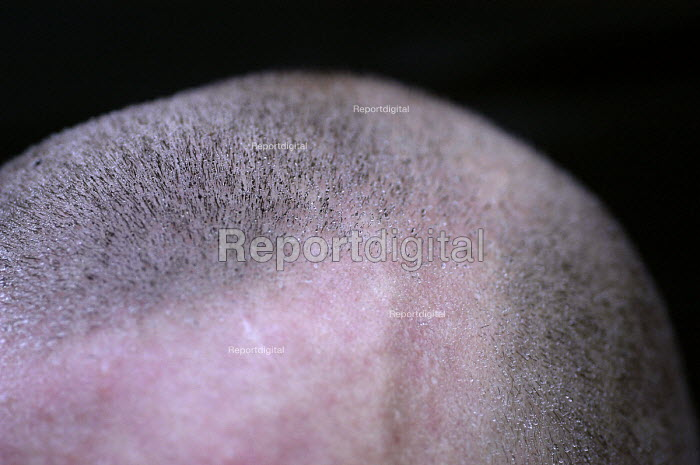 A shaved head with frozen perspiration After taking exercise in the winter cold. - Paul Box - 2004-01-01