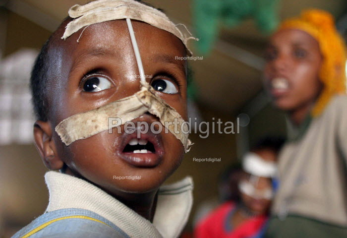 A UNICEF feeding centre for malnourished children in Eastern Ethiopia. The children receive high protein supplements to assist in their recovery. Ethiopia 2005 - Boris Heger - 2005-09-06