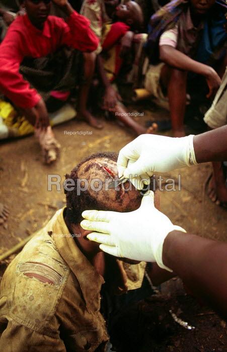 Rwandan Hutu refugee with machete wound having survived a massacre in revenge for the 1994 genocide. Biaro camp, Kisangani, Zaire - Congo 1997 - Howard Davies - 1997-05-03