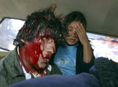 A wounded anti autonomist being evacuated towards an hospital after his group marched towards a voting station to ransack it and voters defended themselves in Santa Cruz, on Sunday, May 4, 2008. Campa... - Boris Heger - 2000s,2008,against,americas,Amerindian,Amerindians,anti,autonomist,autonomists,Bolivia,Bolivian,Bolivians,confront,confrontation,confronted,confronting,Cruz,democracy,division,government,hea,health,ho