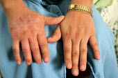 The hands of Margarita Galan, who was injured and then terminated at the Smithfield pork plant in Tarheel, North Carolina. - David Bacon - 13-03-2006