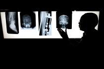 Radiographer examining x- rays. - Duncan Phillips - 25-01-2006