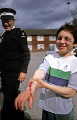 Boy with fake injuries. St John Ambulance Volunteer applied them to fundraise and educate about first aid. - Duncan Phillips - ,2000s,2005,adolescence,adolescent,adolescents,ambulance,AMBULANCES,black,bleeding,blood,boy,boys,child,CHILDHOOD,children,cities,city,cut,dia accident accidents,education,EMOTION,EMOTIONAL,EMOTIONS,e