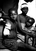A boy who had his arm removed with a machete when his Hutu refugee family were attacked in their camp near Goma in reprisal for the genocide in 1994. Rwanda 1996 - Howard Davies - 03-05-1996