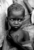 Somali children who are malnourished at a feeding centre for IDPs during the famine. Bardere, Somalia. 1993 - Howard Davies - 03-05-1993