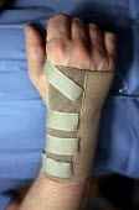 Wrist support for RSI sufferer. - John Harris