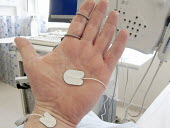 The hand of a patient undergoing a nerve conduction EMG (electromyography) test to study the performance of nerves. their conduction, and muscles, The tests use electrical current passed through needl... - John Harris - 2010s,2013,analysing,analysis,analyzing,appointment,appointments,care,department,diagnosis,diagnostic,disease,DISEASES,disorder,electronic,electronics,equipment,ergonomic,ergonomics,examination,examin