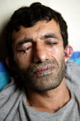 Iranian Kurdish asylum seeker Abas Amini sews up his eyes, mouth and ears to protest against the Home Office's judicial review of his deportation case. Amini, 33, is also on hunger strike and could di... - Jess Hurd - 2000s,2003,activist,activists,against,asylum seekers,asylum seekers,BME black,CAMPAIGN,campaigner,campaigners,CAMPAIGNING,CAMPAIGNS,DEMONSTRATING,DEMONSTRATION,DEMONSTRATIONS,Diaspora,disputes,ethnic,