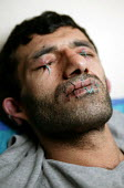 Iranian Kurdish asylum seeker Abas Amini sews up his eyes, mouth and ears to protest against the Home Office's judicial review of his deportation case. Amini, 33, is also on hunger strike and could di... - Jess Hurd - 27-05-2003