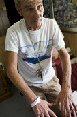 Donny Matsler, a victim of the BP Gulf Oil disaster, with symptoms of chemical poisoning. Dauphin Island, Alabama. USA. - Jess Hurd - 17-08-2010