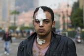 Injuries from the previous night, The Day Of Rage, Al Tahrir Square, Cairo, Egypt. - Jess Hurd - 29-01-2011