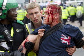 "Injured EDL member refusing treatment by police paramedic because the black officer was an ""Infidel"". English Defence League protest in Birmingham after the Woolwich murder of soldier Lee Rigby. West... - Jess Hurd - 20-07-2013"