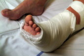 Close up of a plastered broken foot and ankle in a plaster cast. - Paul Carter - 06-02-2006