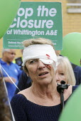 Protestor made up in the manner of a 'casualty' at an Accident & Emergency Unit at a rally at The Whittington Hospital in north London, against the closure of the A&E & Maternity Departments. - Stefano Cagnoni - 2010,2010s,activist,activists,against,bandage,bandages,banner,banners,blood,CAMPAIGN,campaigner,campaigners,CAMPAIGNING,CAMPAIGNS,CLOSED,closing,closure,closures,DEMONSTRATING,demonstration,DEMONSTRAT