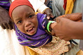 Sudanese refugee child being treated at a health centre. The refugees had fled attacks by Government supported forces in the Darfur region to go to UNHCR camps in Eastern Chad. 2004 - Boris Heger - 01-09-2004