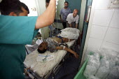 Shifa Hospital. Gaza City. A man badly injured by an Israeli tank shell is rushed to emergency, in the hospital which is struggling to cope with the mounting injured brought every day. Over 20 Palesti... - Thomas Morley - 27-07-2006