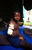 Rwandan Hutu child being cared for by aid agency Merlin having lost an arm in a massacre in revenge for the 1994 genocide. Gisenyi, Rwanda. 1996 - Howard Davies - 03-05-1996