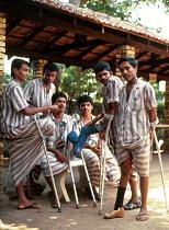 Former Sri Lanka soldiers fitted for prosthetics after landmine injuries. Jaipur Centre, Colombo, Sri Lanka. 1995 - Howard Davies - 03-05-1995