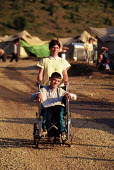 Disabled Kosovar Albanian refugee in a NATO refugee camp . Cegrane refugee camp, Macedonia. 1999 - Howard Davies - 01-05-1999