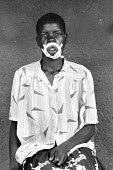 One of ten Acholi women whose lips were mutilated by five Lords Resistance Army rebels after they left their camp near Kitgum to fetch water from a well. Another woman and her child were murdered in t... - Thomas Morley - 24-02-2005