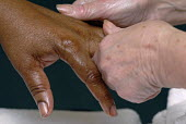 Two people massaging each others hands - Timm Sonnenschein - 2000s,2007,Alternative Medicine,arm,arms,BAME,BAMEs,Black,BME,bmes,bodies,body,comfort,comforting,Complementary Medicine,cultural,diversity,employee,employees,Employment,ethnic,ethnicity,FEMALE,finger