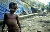 A Bangladeshi child in a slum area of Dhaka. In the back ground are their shelters covered in the the blue UN tarpaulins saved from the floods of !985 and the cyclone of 1991. Dhaka, Bangladesh 2002 - Thomas Morley - 12-03-2002