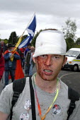 Protester with head injury allegedly caused by police baton on the G8 Alternatives march through Auchterarder, G8 summit. - Paul Mattsson - 2000s,2005,activist,activists,adult,adults,against,Anti,anti capitalism,Anti Capitalist,Bandage,Bandaged,Bandages,baton,Batons,Bleeding,Blood,Bloody,CAMPAIGN,campaigner,campaigners,CAMPAIGNING,CAMPAIG