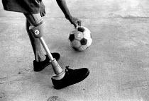 Child landmine victim playing football. Batambang, Cambodia. 1997 - Masanori Kobayashi - 03-05-1997