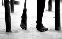 Landmine victim learning to use artificial limb. Cambodia. 1997 - Masanori Kobayashi - 03-05-1997