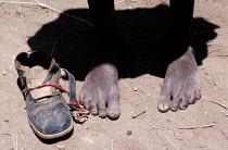 Famine, Ethiopia, 1984 refugee child returning home with one shoe. Harrar - Masanori Kobayashi - 03-05-1990
