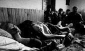 Peja, Albanian border, Kosovo 1993 Worker beaten up by Serb police. Soles of his feet were beaten by police the day before. In the villages surrounding the town of Pec/Peja near the Albnaian border, s... - Melanie Friend - 25-02-1993
