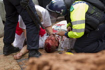 20-07-2013 - Injured EDL member treated by police medics. English Defence League protest in Birmingham, West Midlands. © Jess Hurd